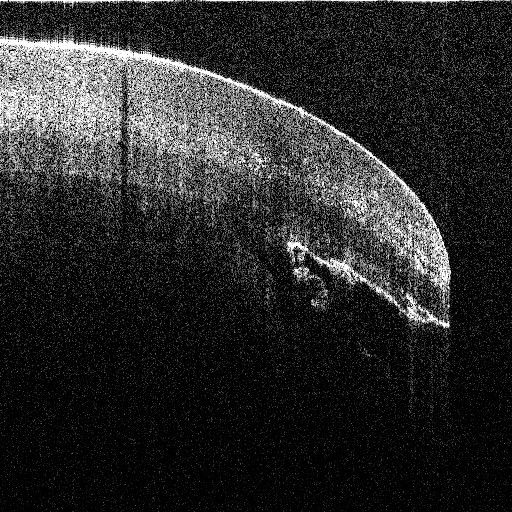 Tip of Fingernail with an OCT systems